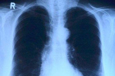Lung x-ray.